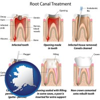 ak root canal treatment performed by an endodontist