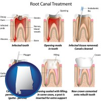 alabama map icon and root canal treatment performed by an endodontist