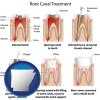 arkansas map icon and root canal treatment performed by an endodontist