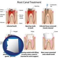 arizona map icon and root canal treatment performed by an endodontist