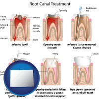 co root canal treatment performed by an endodontist