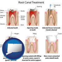 connecticut map icon and root canal treatment performed by an endodontist