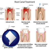 washington-dc map icon and root canal treatment performed by an endodontist