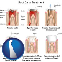 delaware map icon and root canal treatment performed by an endodontist