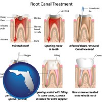 florida root canal treatment performed by an endodontist