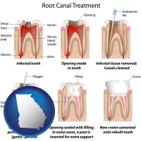 georgia map icon and root canal treatment performed by an endodontist