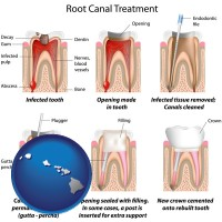 hawaii map icon and root canal treatment performed by an endodontist