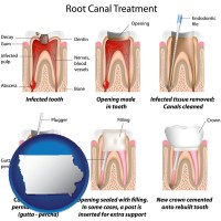iowa root canal treatment performed by an endodontist