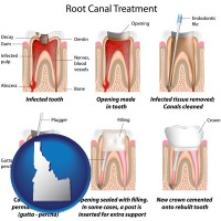id root canal treatment performed by an endodontist