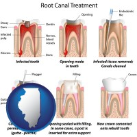 illinois map icon and root canal treatment performed by an endodontist