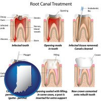 indiana map icon and root canal treatment performed by an endodontist