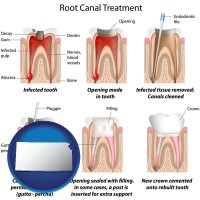 kansas map icon and root canal treatment performed by an endodontist
