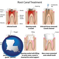 louisiana map icon and root canal treatment performed by an endodontist