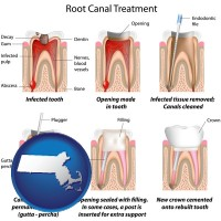 massachusetts map icon and root canal treatment performed by an endodontist