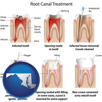 maryland map icon and root canal treatment performed by an endodontist