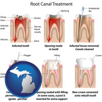 michigan map icon and root canal treatment performed by an endodontist