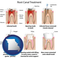 missouri map icon and root canal treatment performed by an endodontist
