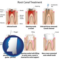 mississippi map icon and root canal treatment performed by an endodontist