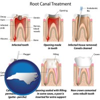 north-carolina map icon and root canal treatment performed by an endodontist
