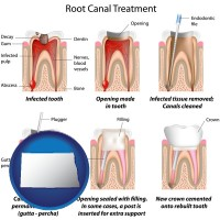 north-dakota map icon and root canal treatment performed by an endodontist