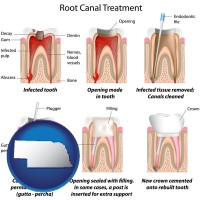 nebraska root canal treatment performed by an endodontist