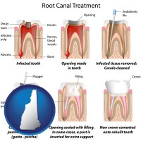 nh root canal treatment performed by an endodontist