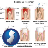 new-jersey map icon and root canal treatment performed by an endodontist