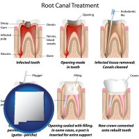 new-mexico map icon and root canal treatment performed by an endodontist