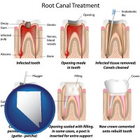 nv root canal treatment performed by an endodontist