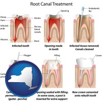 new-york map icon and root canal treatment performed by an endodontist
