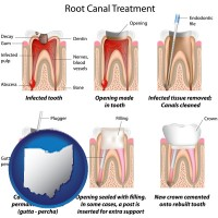 ohio map icon and root canal treatment performed by an endodontist