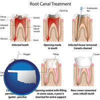 oklahoma map icon and root canal treatment performed by an endodontist