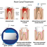 pennsylvania map icon and root canal treatment performed by an endodontist