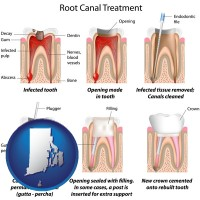 ri root canal treatment performed by an endodontist