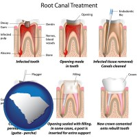 south-carolina map icon and root canal treatment performed by an endodontist