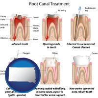 sd root canal treatment performed by an endodontist