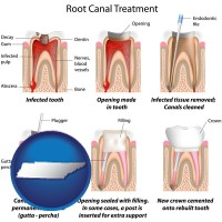 tennessee map icon and root canal treatment performed by an endodontist