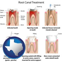 texas root canal treatment performed by an endodontist