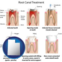 utah map icon and root canal treatment performed by an endodontist