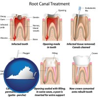 virginia root canal treatment performed by an endodontist