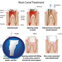 vermont map icon and root canal treatment performed by an endodontist