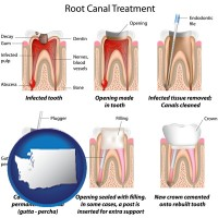 washington map icon and root canal treatment performed by an endodontist
