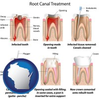 wisconsin root canal treatment performed by an endodontist