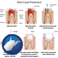 wv root canal treatment performed by an endodontist