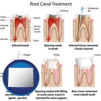 wyoming map icon and root canal treatment performed by an endodontist