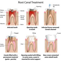 root canal treatment performed by an endodontist