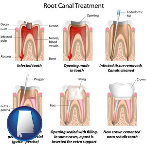 root canal treatment performed by an endodontist - with Alabama icon