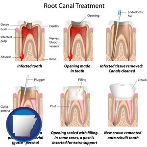 root canal treatment performed by an endodontist - with Arkansas icon