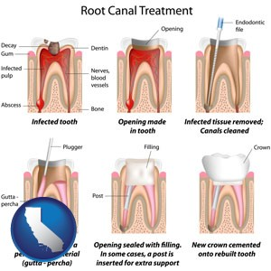 root canal treatment performed by an endodontist - with California icon