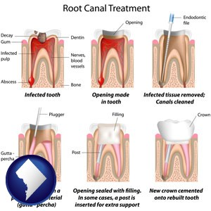 root canal treatment performed by an endodontist - with Washington, DC icon